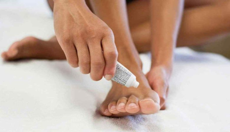 Best Fungal Nail Treatments in India